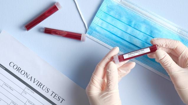 Antigenschnelltests versprechen innerhalb von 30 Minuten Gewissheit über eine vorliegende SARS-CoV-2-Infektion. An wen dürfen Apotheker:innen die In-vitro-Diagnostika abgeben? (c / Foto: photoguns / stock.adobe.com)