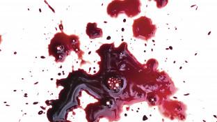 Zwischen Venenthrombose und Blutung