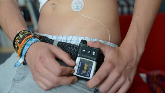 Vor allem Diabetiker mit Insulinpumpe brauchen ultraschnell-wirksame Insuline. (Foto:b4producer / Fotolia)