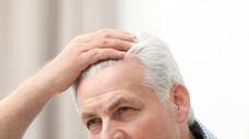 Ein prominentes Beispiel für unerwünschte Wirkungen von MTX ist Haarausfall. Alopezie ist jedoch meist keine Folge von der Therapie, sondern eher in der Grunderkrankung begründet. Die Patienten sollten beruhigt werden, dass sich das oft subjektiv wahrgenommene Problem meist von selbst löst. (Foto: New Africa / AdobeStock)