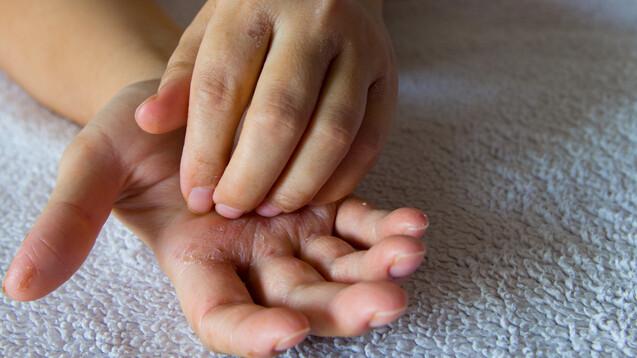 Die atopische Dermatitis ist die häufigste chronisch-entzündliche Hauterkrankung, die bis zu 20 Prozent der Kinder und bis zu 8 Prozent der Erwachsenen betrifft. (Foto: SMAK_Photo / AdobeStock)