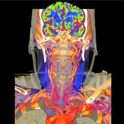 D1010_CT Angiographie_HIM2.jpg