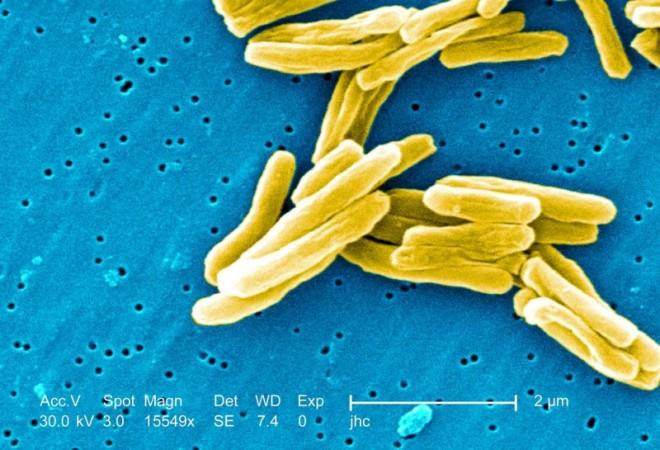 D1611_ck_AuT_Tuberkulose.jpg