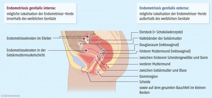 Pharmakotherapie der Endometriose