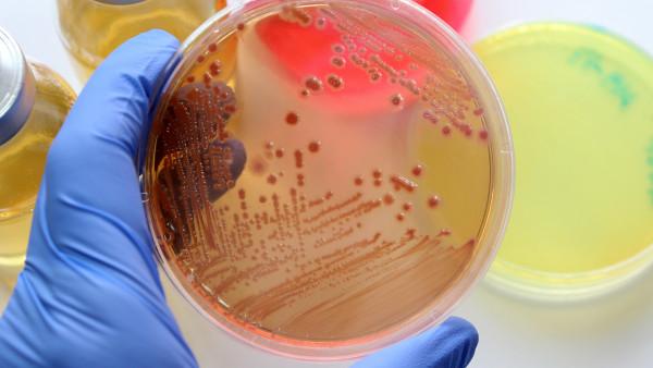 """""""Antibiotikaforschung muss sich auszahlen"""""""