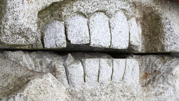Bei Zahnschmerzen immer Ibuprofen & Co.?
