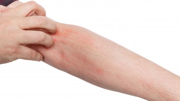 Ärzte verordnen 60 Prozent mehr Krätze-Arzneimittel