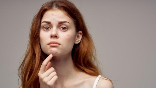 Der PRAC empfiehlt, die Anwendung von Cyproteron ab Tagesdosen von 10 mg bei Akne, Alopezie, Hirsutismus und Hypersexualität einzuschränken, nicht jedoch bei Prostatakarzinom. Grund ist ein erhöhtes Risiko für Meningeome. ( r / Foto: SHOTPRIME STUDIO / stock.adobe.com)