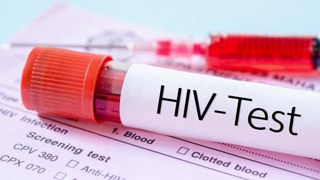 Bald als Schnelltest aus der Apotheke? Das Bundesgesundheitsministerium prüft, ob auch in Deutschland HIV-Schnelltests für zu Hause erhältlich sein sollten. (Foto: fotolia / gamjal)