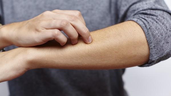 Zinkversorgung überprüfen – unterstützende Therapie der Neurodermitis