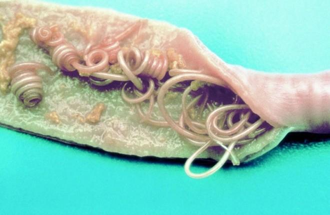 Die Würmer in den Lungen beim Menschen die Symptome die Behandlung des Fotos
