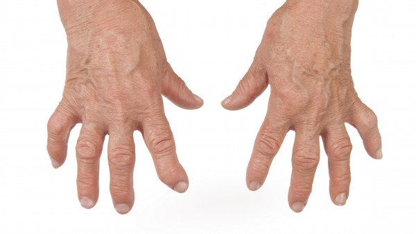 Certolizumab Pegol jetzt auch First-line-Therapie bei rheumatoiderArthritis