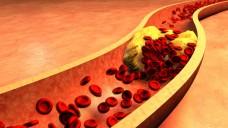 Wem andere Arzneimittel und Diät nicht hilfen, die LDL-Werte zu senken, für den können neuere Cholesterinsenker eine Hilfe sein. (Foto: ralwe / Fotolia)