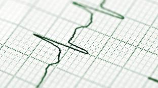 Pharmakotherapie Herzrhythmusstörungen